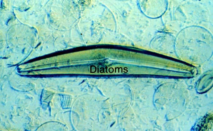 The gallery for --> Green Freshwater Diatoms